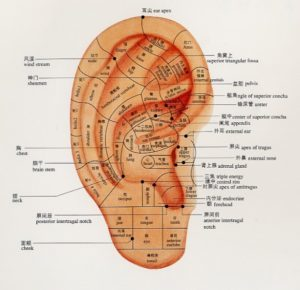 Ear Acupuncture for Tinnitus and Hearing Loss